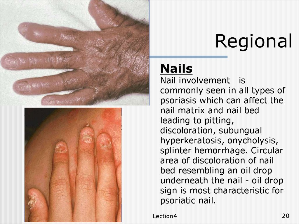 nail changes in psoriasis ppt)