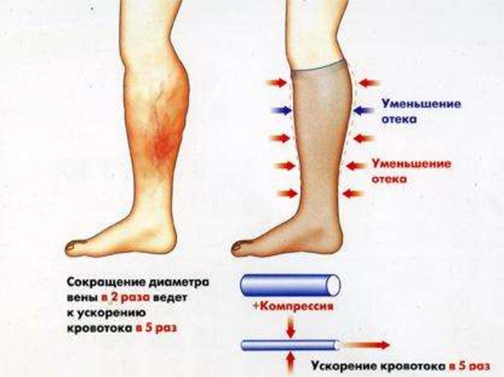 încărcarea de la picioarele varicoase
