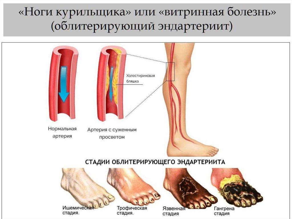 mididian cu vene varicoase