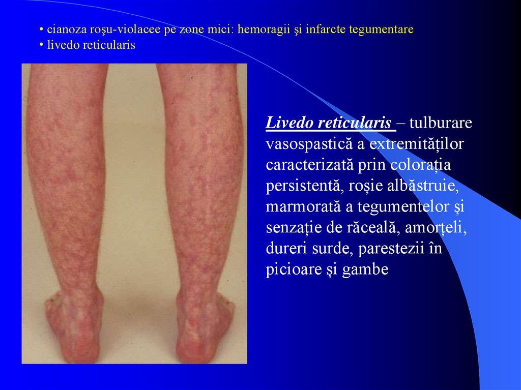boli ale venelor și articulațiilor extremităților inferioare)