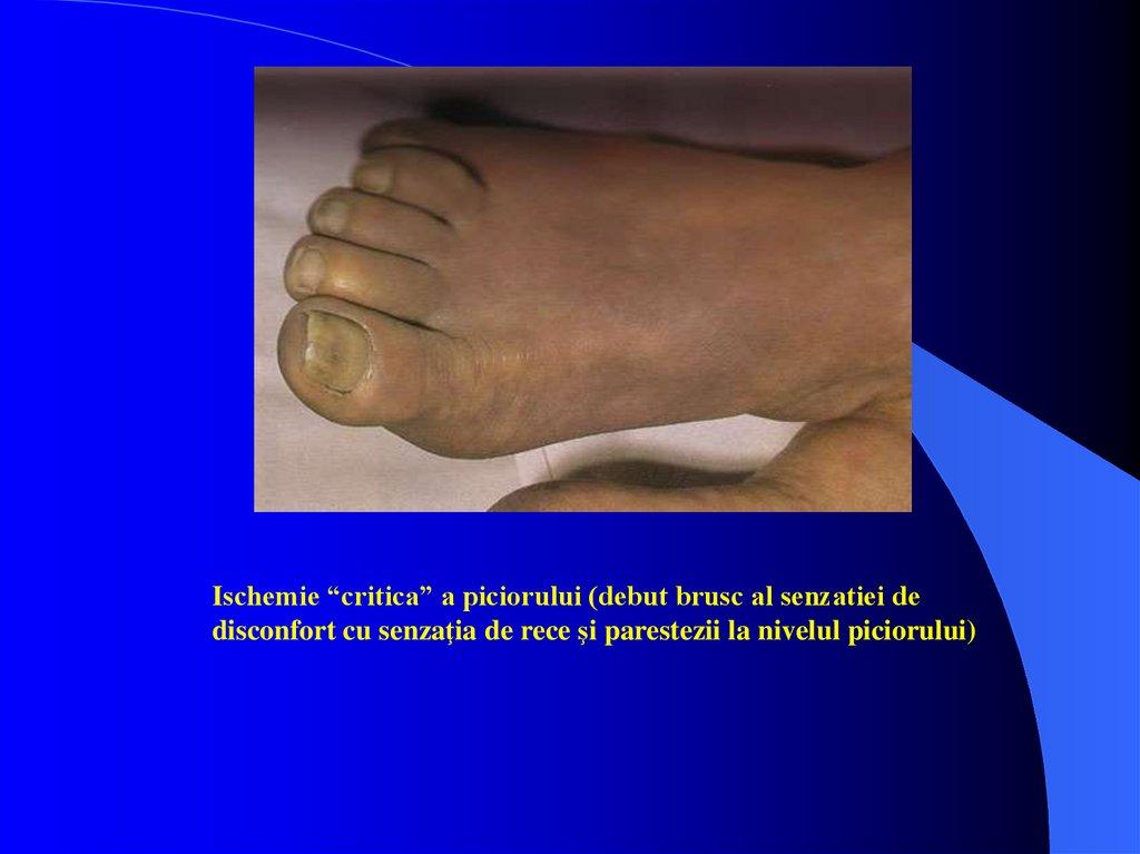 inspecția piciorului în varicoză)