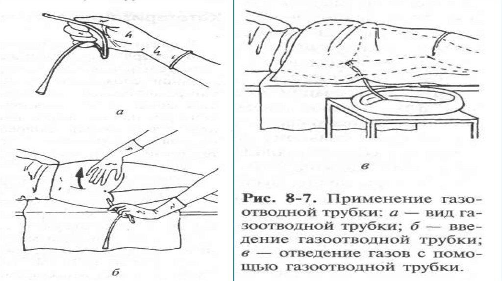 Постановка клизм (очистительной, сифонной, лекарственной)